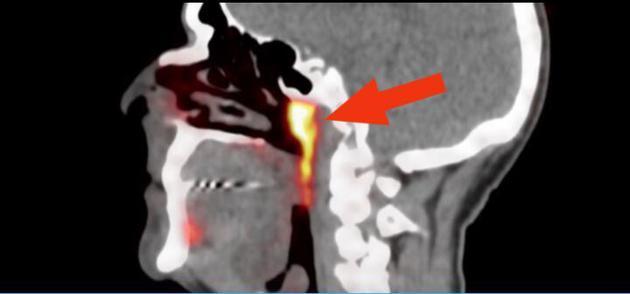 Descubren un nuevo órgano entre la nariz y la garganta.